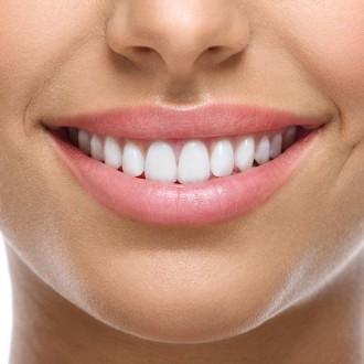 Smiling Woman's Teeth
