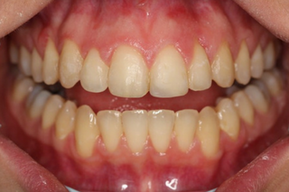 Becky Poole after using Invisalign at The Courtyard